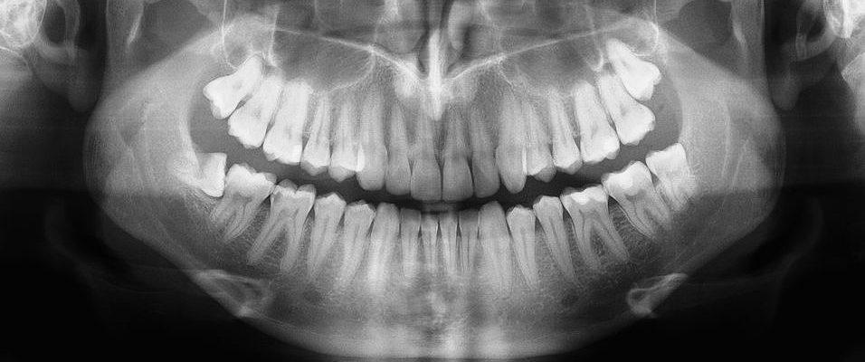 الأشعة السينية البانورامية الرقمية والأشعة السينية السيفالومترية